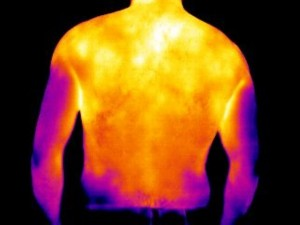 This image shows shoulder inflammation